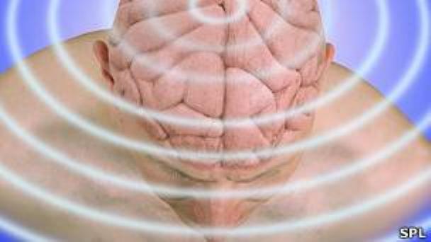 cerebro-stimulacion-elf-emf-rnm